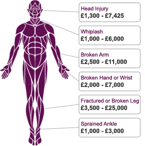 Needlestick injury claims personal injury solicitors the specter diagram of a body describing how much compensation could be paid out for various types of ccuart Gallery